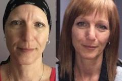 Prothèse capillaire Avant-Après